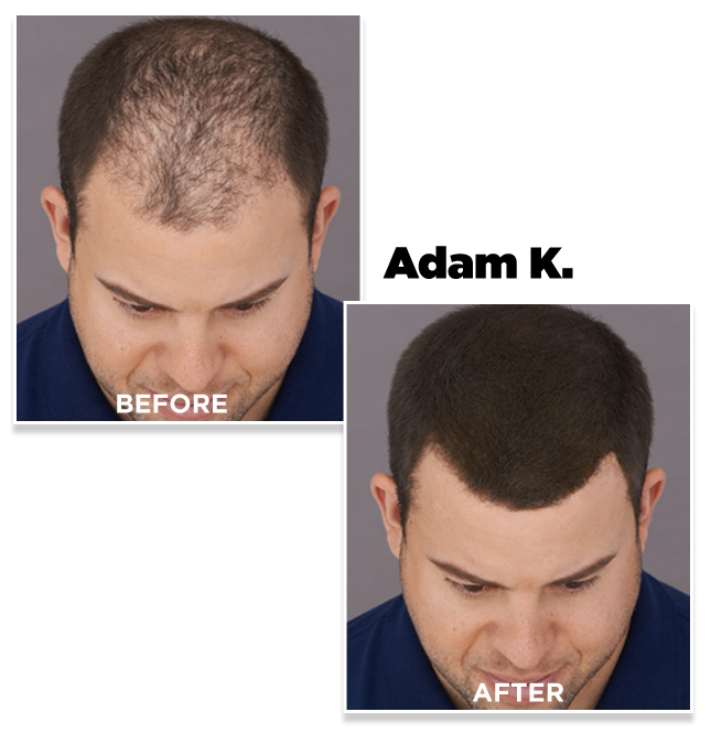 Adam K. before and after using Toppik