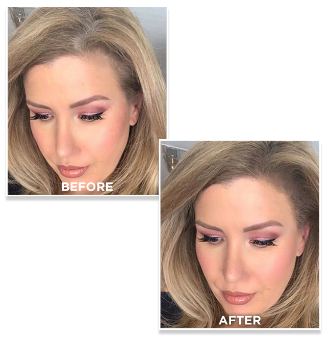 before and after using Toppik